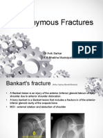 eponymousfractures-160228213145