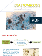 Cromoblastomicosis seminario