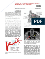 Sphenopalatine Artery _SPA_ Ligation