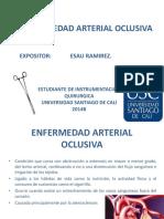 Enfermedad Arterial Oclusiva