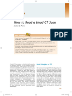Cara Membaca CT Scan.pdf