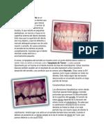Hipoplasia_del_esmalte.docx