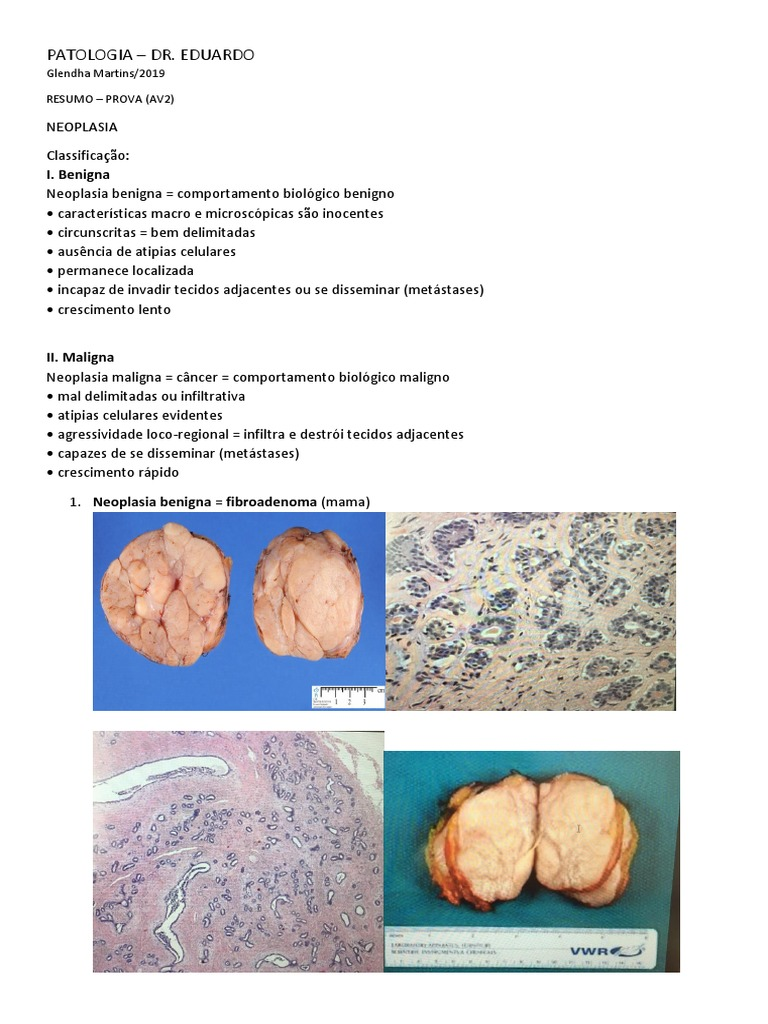 Carcinoma pavimento celular invasivo