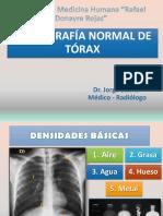 1. Rx. Normal de Torax 10.18