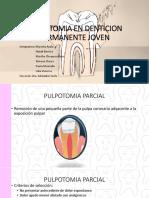 Pulpotomia en Denticion Permanente Joven 2