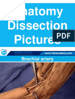 Dissection Anatomy Upper Limb
