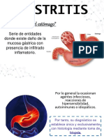 Gastritis Equipo 3