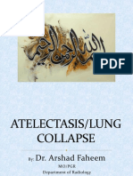 Atelectasis by Dr. Arshad Faheem