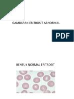 Kelainan morfologi eritrosit
