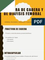 Fractura de Cadera y de Diafisis Femoral