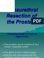 Trans Urethra l Resection of the Prostate 1