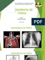 Torax radiografias