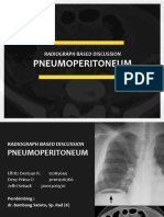 RBD Pneumoperitoneum