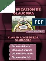 Glaucoma Primario
