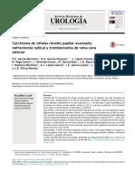 Carcinoma de células renales papilar avanzado