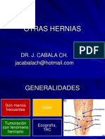 OTRAS HERNIAS COMPLICACIONES DE LAS HERNIAS 2017.pptx