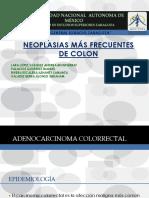 Neoplasias de colon