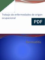 Trabajo 2 Dermatitis