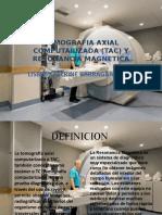 Tomografia Axial Computarizada (Tac) y Resonancia