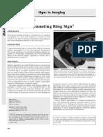 Hyper Attenuating Ring Signin E Appendicitis
