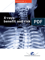 x Rays Benefit Risk