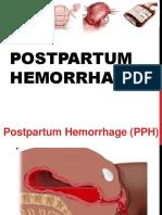 Postpartum Hemorrhage