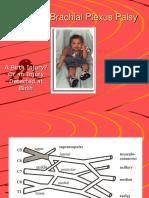 54820051 Perinatal Brachial Plexus Palsy3