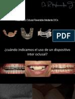 tratamiento oclusal