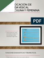 Colocación de Sonda Vesical Masculina y Femenina