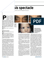 the-ptosis-spectacle.pdf