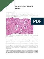 Nanopartículas de Oro Para Tratar El Cáncer de Próstata