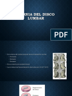 Hernia Del Disco Lumbar