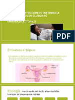 Aborto y Embarazo Ectopico