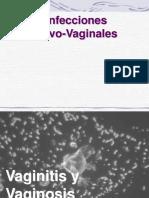 Gardnerella Vaginalis,Candida Ppt