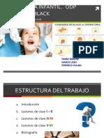 Clases de Black Odontología