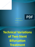 Technical Variations of Two-Stent Bifurcation