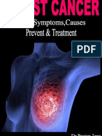 Breast Cancer   Signs,Symptoms,Causes,Prevent and Treatment