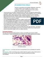 Inflammation Virale (Avec Les Images)