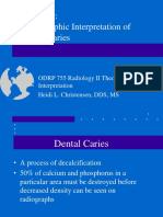 Lecture 4 Caries (1)