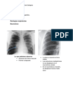 Patologías respiratorias (1)
