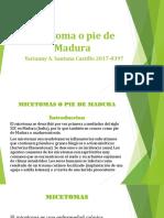 micetomas.pptx