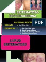 Lupus Eritematoso y Esclerodermia 2
