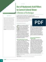 Acido hialuronico para tratamiento scleral show