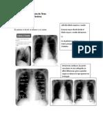 Anatomía Imagenológica de Tórax (1)