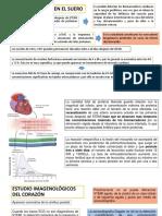 Biomarcadores de Infarto Agudo de Miocardio Con Elevacion St