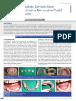 Flexible Thermoplastic Denture Base.pdf