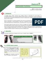 Drenagem Pleural (v1.0)