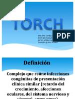 231053516-Exposicion-Torch.pptx