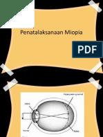 Talak Miopia