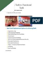 Dental implant  (permanent teeth replacement) by  deccan multispeciality hardikar hospital